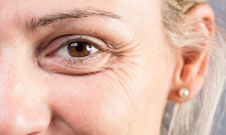 Le rughe come sintomo cosa dicono della nostra salute
