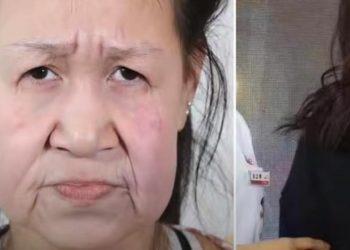 Ragazza di 15 anni con progeria torna giovane grazie alla chirurgia plastica